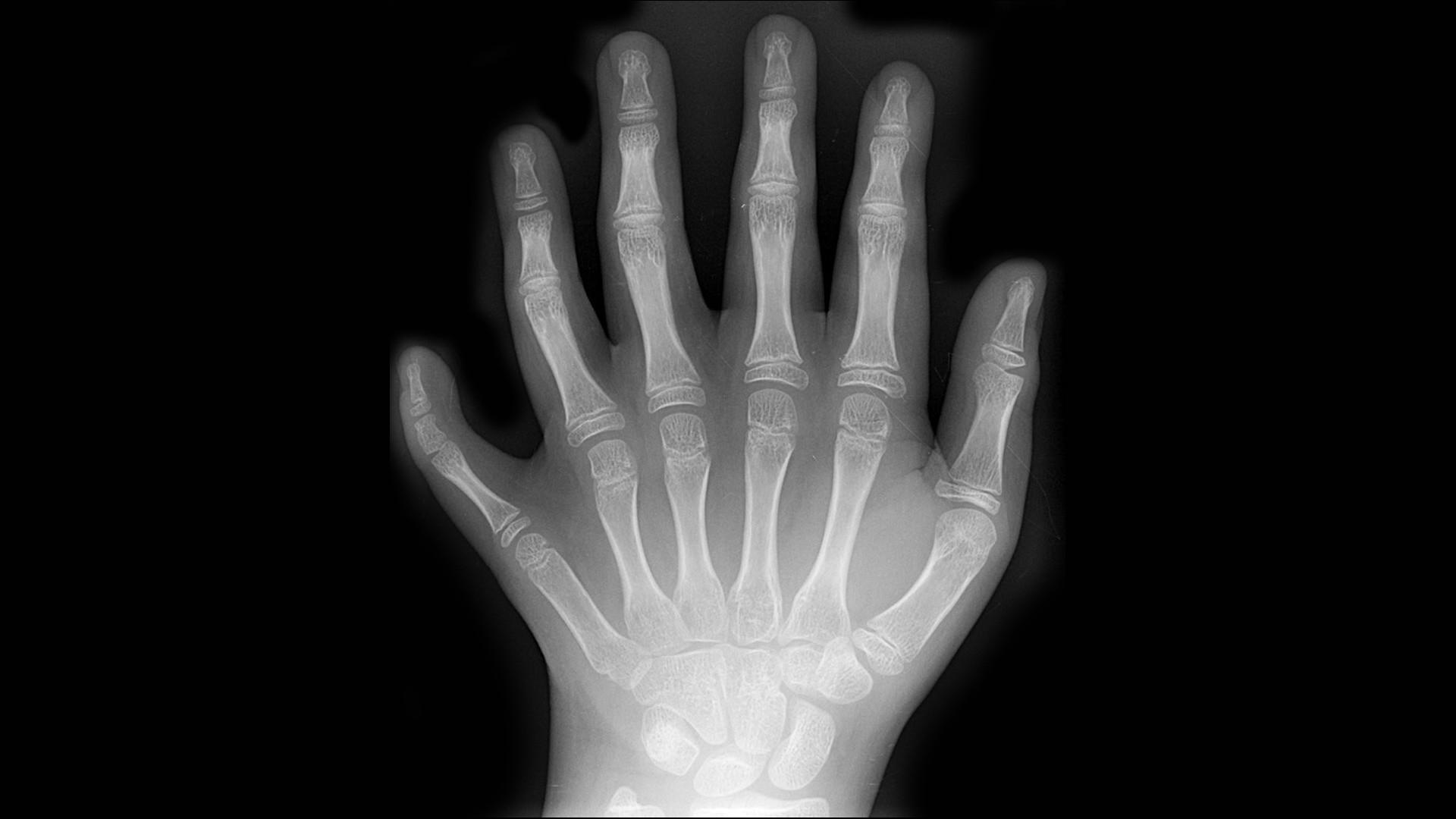 Рентгенова снимка на ръка с шест пръста